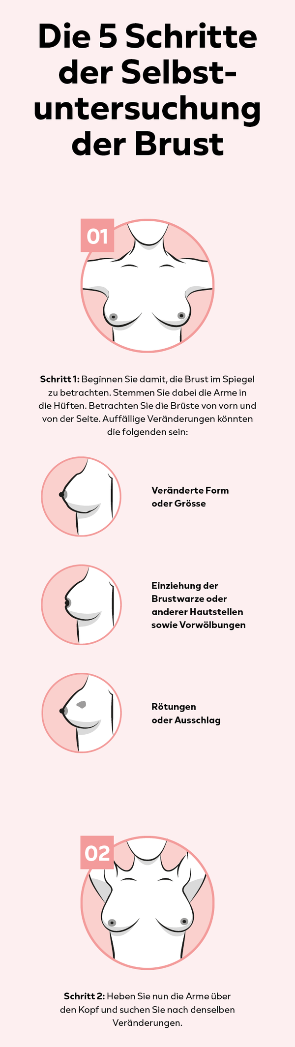 Brust im Spiegel betrachten auf veränderte Form, Grösse oder Einziehung der Brustwarzen